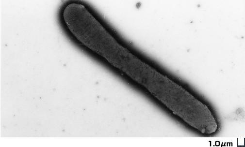 アシディミクロビウム綱